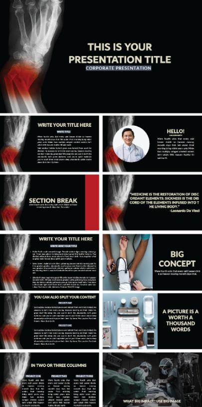Free Fracture Medical Presentation Template