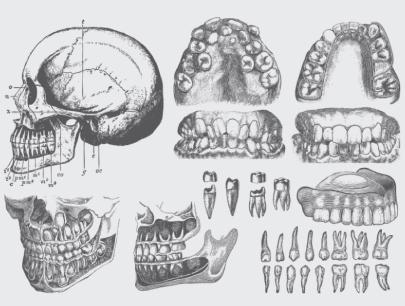 Free Dental Disease Realistic Illustrations